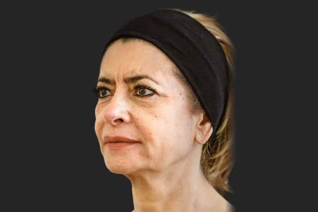 עור הפנים לפני שימוש בסטימולטור הקולגן ELLANSE. צילום: יח״צ