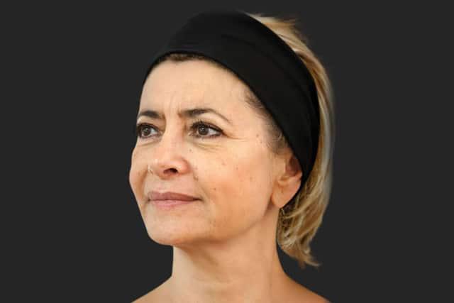 מראה הפנים לאחר הטיפול בסטימולטור לייצור קולגן ELLANSE. צילום: יח״צ