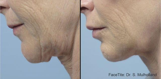 בצילום: פייס טייט - לפני ואחרי הטיפול. צילום: יח״צ פרומדיקס