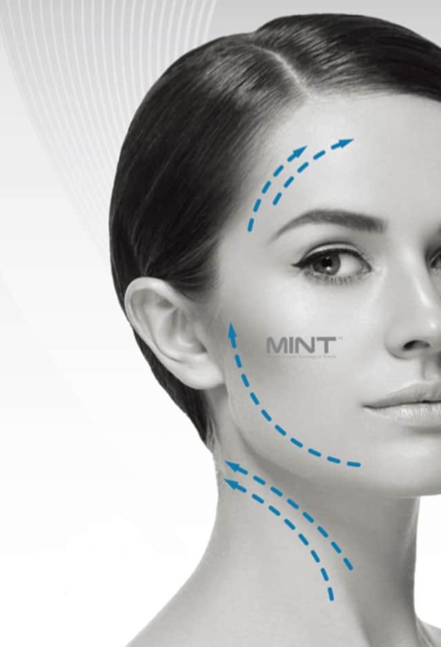 MINT. טכנולגיה קוראנית חוטים להרמת פנים ללא ניתוח. צילום״ יח״צ