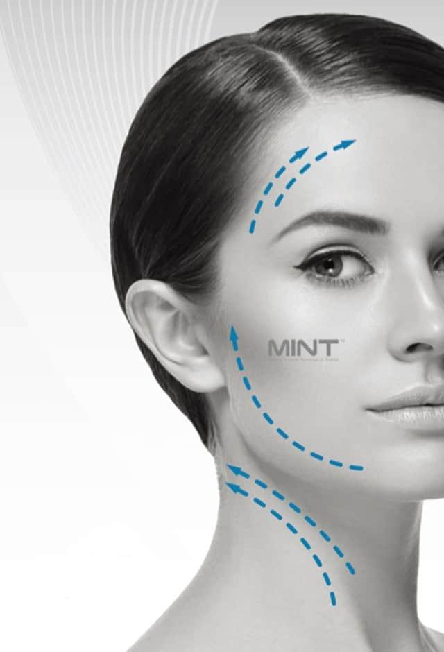 MINT. טכנולגיה קוראנית חוטים להרמת פנים ללא ניתוח. צילום: יח״צ