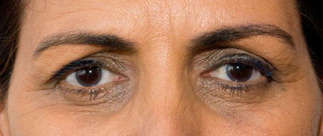 העיניים של המדינה