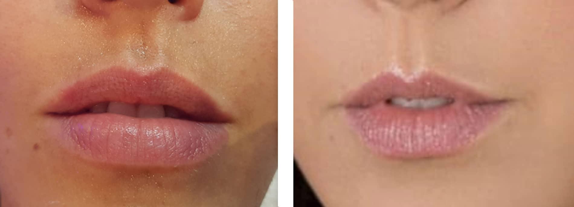 ידית חדשה לעיבוי והתפחת שפתיים MED OP ידית הסאקשן צילום שרון שרון