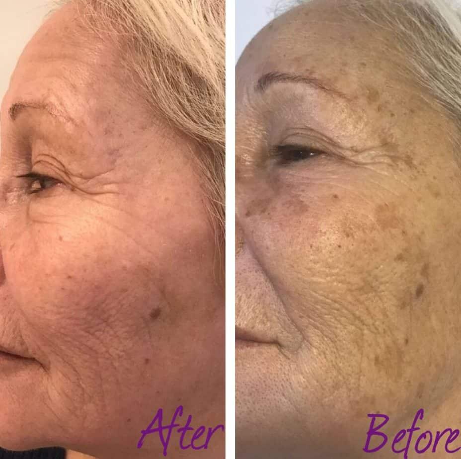מרקם העור לאחר טיפול פילינג רפואי בינוני. צילום באדיבות ד״ר איתן ברמן